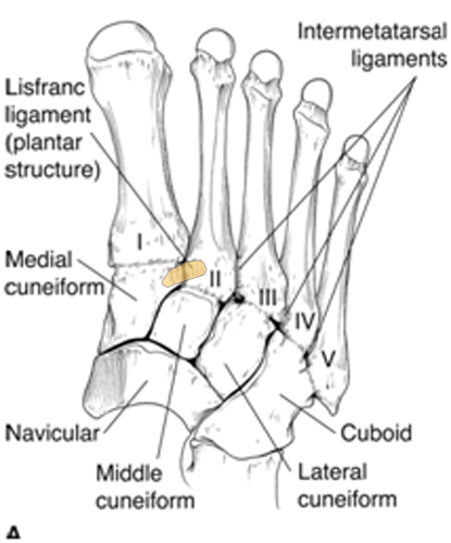 Lisfranc Injury Juniorbones
