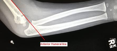 paediatric elbow fracture lines